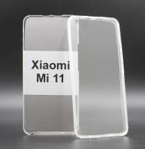 billigamobilskydd.seFront & Back skal Xiaomi Mi 11